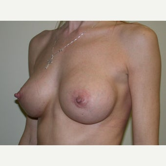 35-44 year old woman treated with Breast Augmentation after 2494323