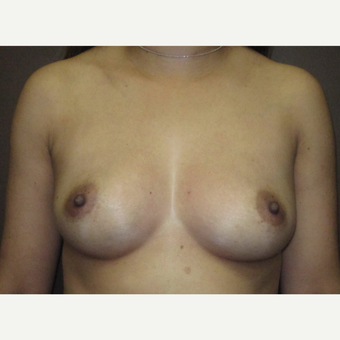 35-44 year old woman treated with Breast Implants before 3424479