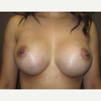 35-44 year old woman treated with Breast Implants after 3424479