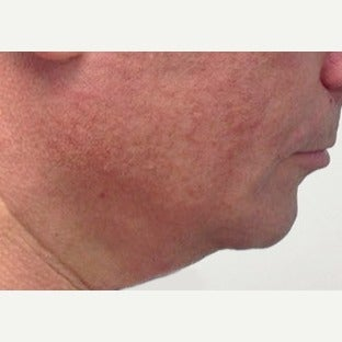35-44 year old man treated with Kybella after 2392992