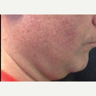 35-44 year old man treated with Kybella before 2392992
