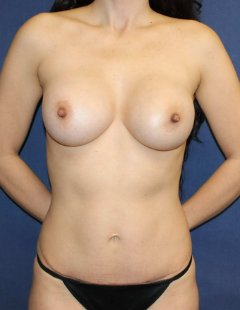 Mommy makeover with Mini Tummy Tuck and Sientra gummy bear breast implants after 3714742