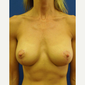 Vertical Mastopexy Augmentation after 3685802