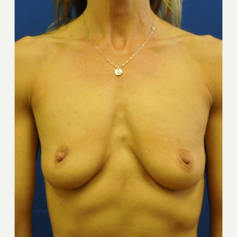 Vertical Mastopexy Augmentation before 3685802