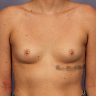 18-24 year old woman treated with Breast Augmentation before 3494784