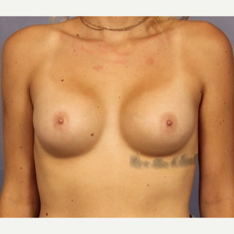 18-24 year old woman treated with Breast Augmentation after 3494784