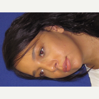 Rhinoplasty after 3202341