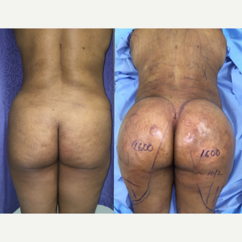 35-44 year old woman has Brazilian Butt Lift Procedure before 2256155