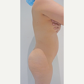 25-34 year old woman treated with Slim Lipo before 3496229