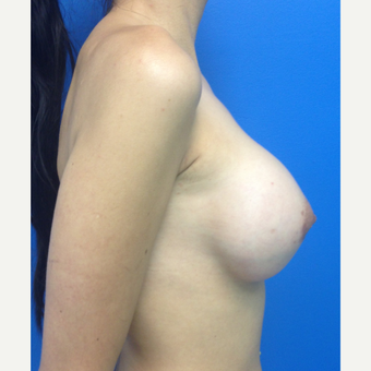 Breast Augmentation after 3743735