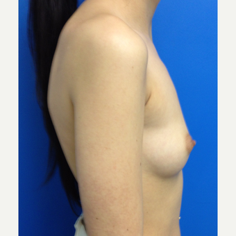 Breast Augmentation before 3743735