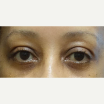 45-54 year old woman treated with Eyelid Surgery after 3448303