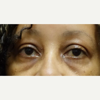 45-54 year old woman treated with Eyelid Surgery before 3448303
