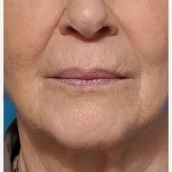 Treating Fine Lines Around the Mouth after 3793627