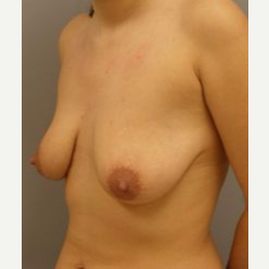 25-34 year old woman treated with Breast Lift with Implants before 3122342