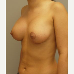 25-34 year old woman treated with Breast Lift with Implants after 3122342