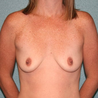 Breast Augmentation using Anatomic Gummy Bear Mentor MemoryShape silicone gel breast implants before 1712579