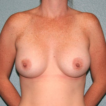 Breast Augmentation using Anatomic Gummy Bear Mentor MemoryShape silicone gel breast implants after 1712579