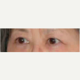 Eyelid Surgery after 3058018