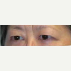 Eyelid Surgery before 3058018