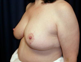 Breast Reduction  1357657