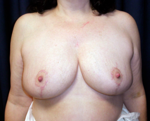 Breast Reduction  after 1357657