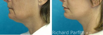 Submental Liposuction in combination with Facelift before 1115983