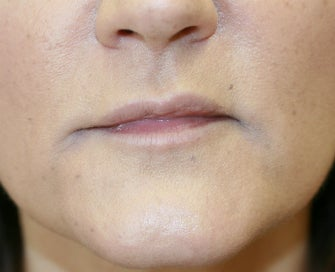 Juvederm into downturned corners of mouth after 845638