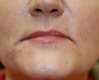 Juvederm into downturned corners of mouth before 845638