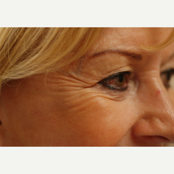45-54 year old woman treated with Botox before 3837361