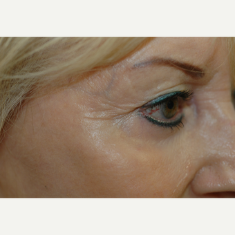 45-54 year old woman treated with Botox after 3837361
