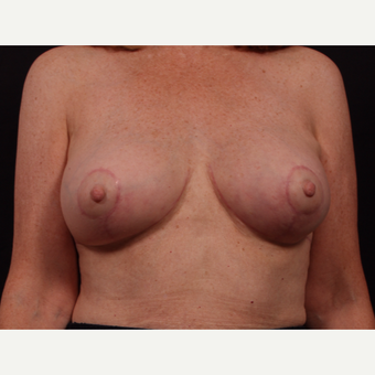55-64 year old woman treated with Breast Implant Revision after 3577950