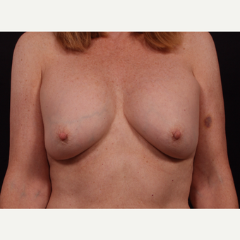 55-64 year old woman treated with Breast Implant Revision before 3577950