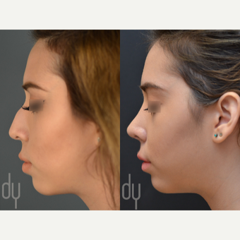Rhinoplasty with rib cartilage before 3116168