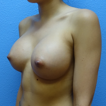 18-24 year old woman treated with Breast Augmentation after 3137426