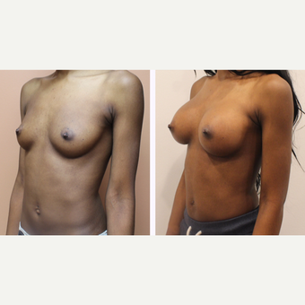 35-44 year old woman treated with Breast Augmentation before 3300105