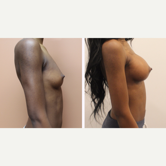 35-44 year old woman treated with Breast Augmentation after 3300105