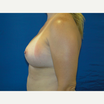 Breast Augmentation with 450 cc Silicone Implants after 3623129