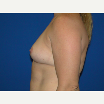 Breast Augmentation with 450 cc Silicone Implants before 3623129