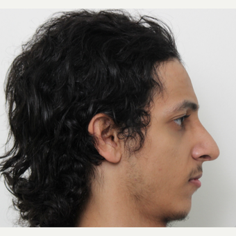 18-24 year old man treated with Rhinoplasty after 3365188