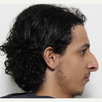 18-24 year old man treated with Rhinoplasty before 3365188