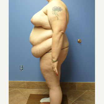 35-44 year old woman treated with Weight Loss before 3370135