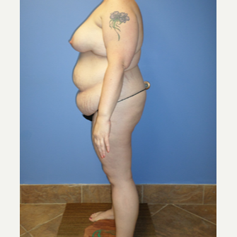 35-44 year old woman treated with Weight Loss after 3370135