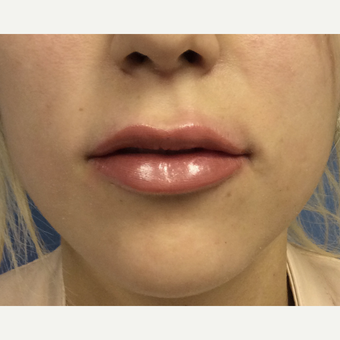 18-24 year old woman treated with Lip Augmentation after 3697494