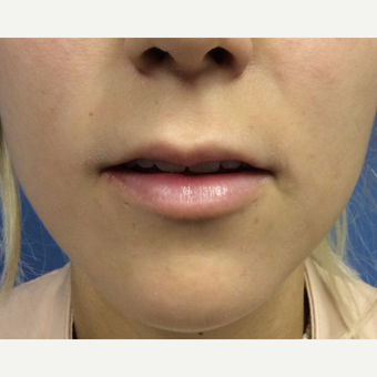 18-24 year old woman treated with Lip Augmentation before 3697494