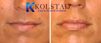 Natural Lip Augmentation before 1260559