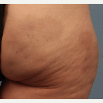 45-54 year old woman treated with Cellfina for Cellulite after 2552098