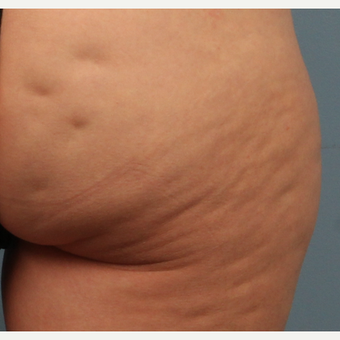 45-54 year old woman treated with Cellfina for Cellulite before 2552098