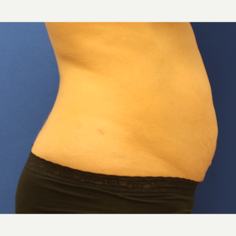 35-44 year old woman treated with Tummy Tuck before 3803793