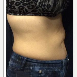 35-44 year old woman treated with SculpSure before 3842822